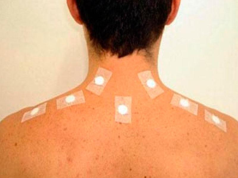 Acupuntura sem dor é possível?