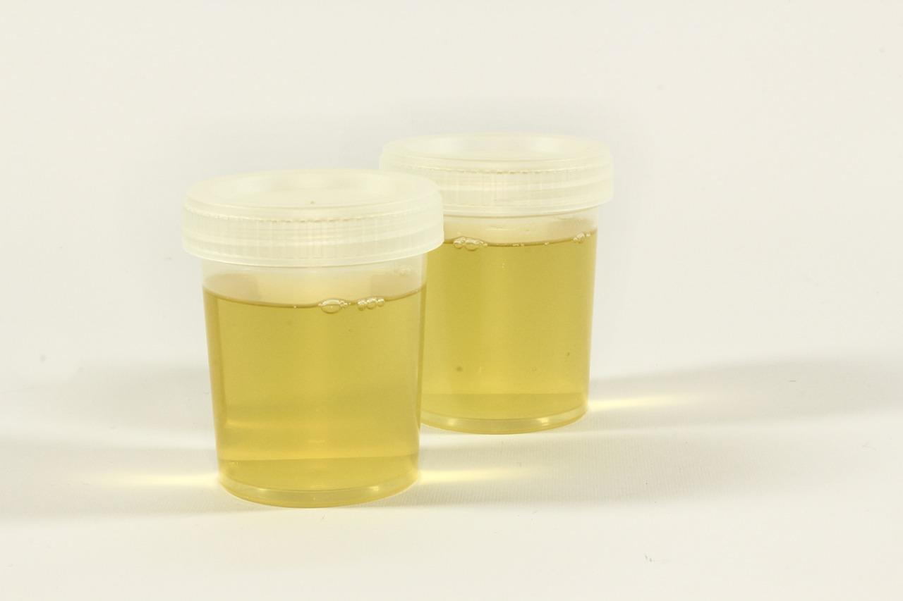 Urinoterapia cura alternativa